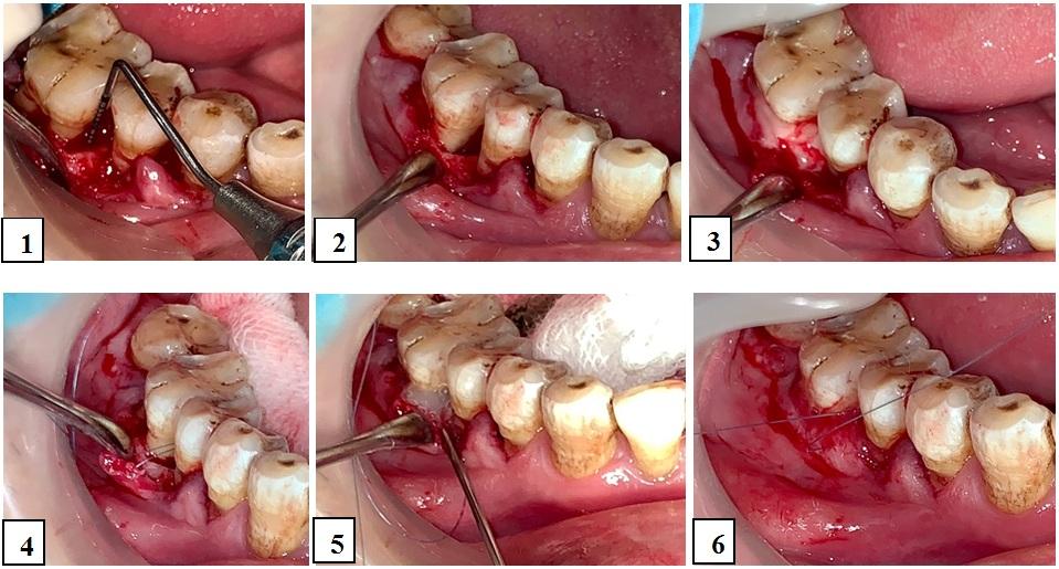 Figure 3  Quy trình phẫu thuật vạt kết hợp bơm EMD. Tạo vạt, bộc lộ sang thương (1); xử lí sạch mặt chân răng (2); đặt EDTA 24% trong 2 phút (3); rửa sạch, luồn chỉ khâu (4); bơm EMD ngập sang thương (5); thắt chỉ, khâu đóng (6).