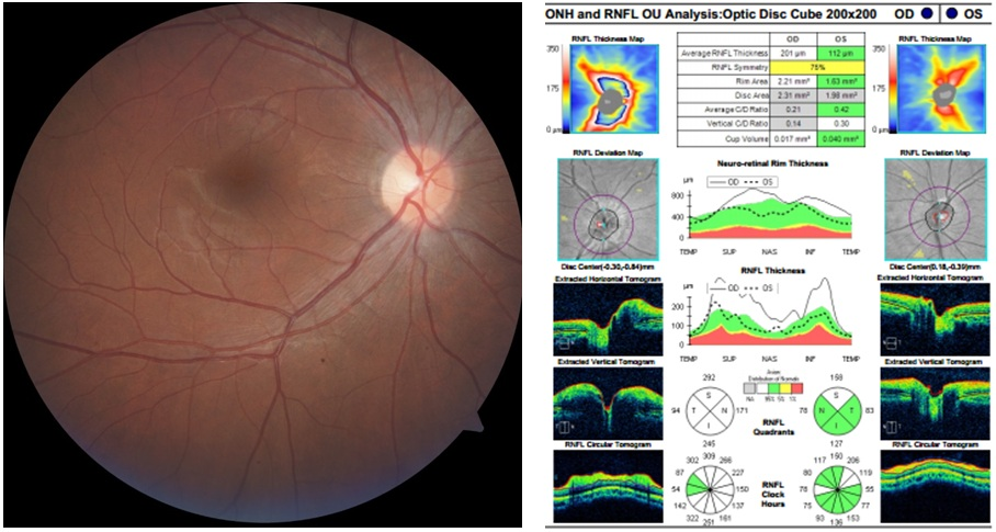 Figure 1  Blurred nasal margin of right optic disc (left) and increased RNFL thickness (right)