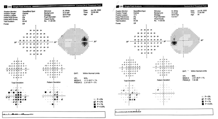 Figure 2  Enlarged physiological blind spot on right eye (left) compared to left eye (right)