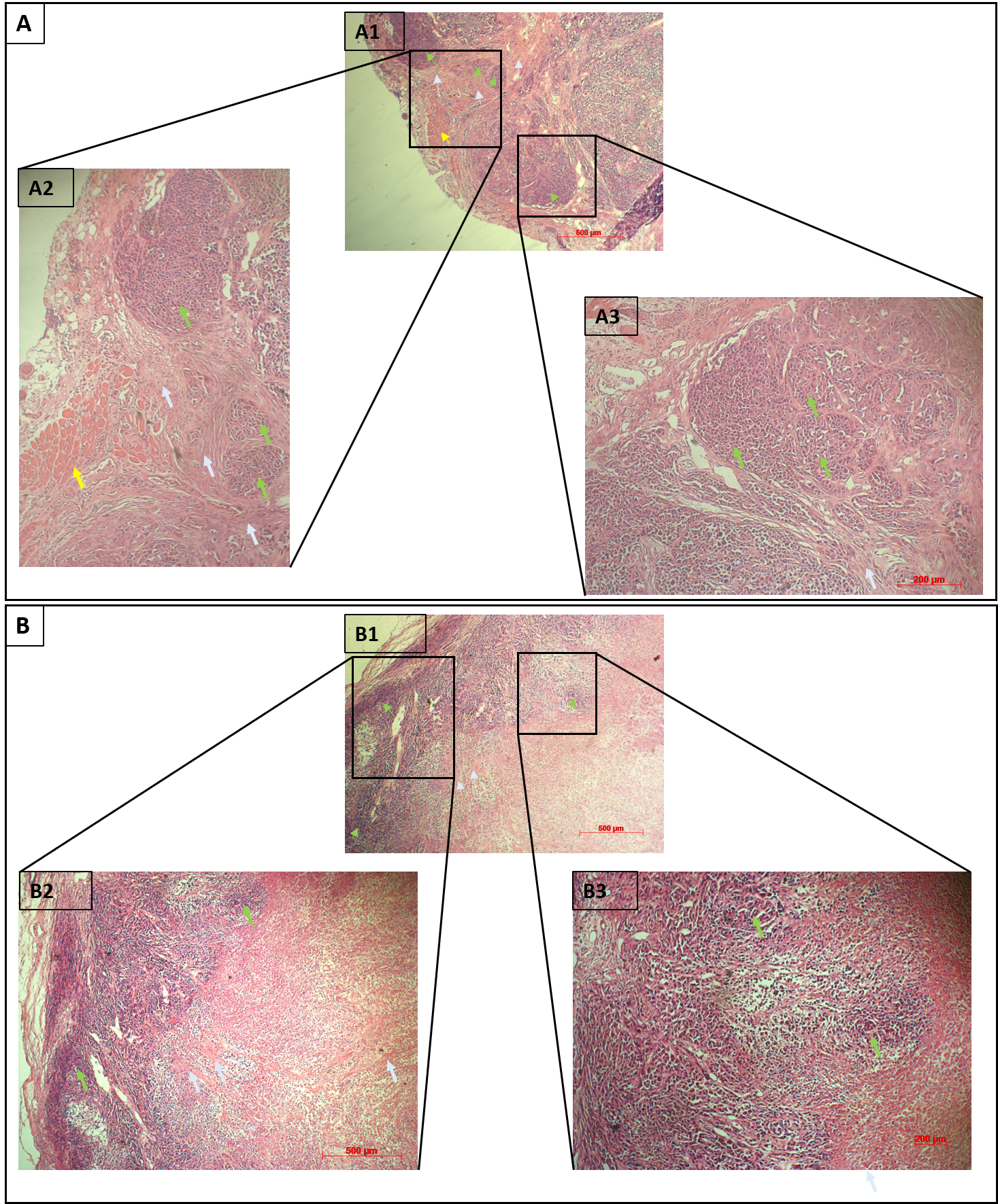 Figure 5  ); green arrows indicate evidence of cancer cell clumps, yellow arrows identify the areas of muscle tissue, gray arrows expose the fibrosis tissues.