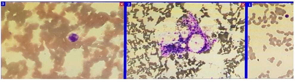 Figure 4  Hình ảnh tủy đồ bệnh nhi tủy giảm sản 1