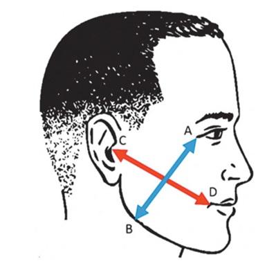Figure 3  Vị trí các điểm mốc giải phẫu đo lường mức độ sưng