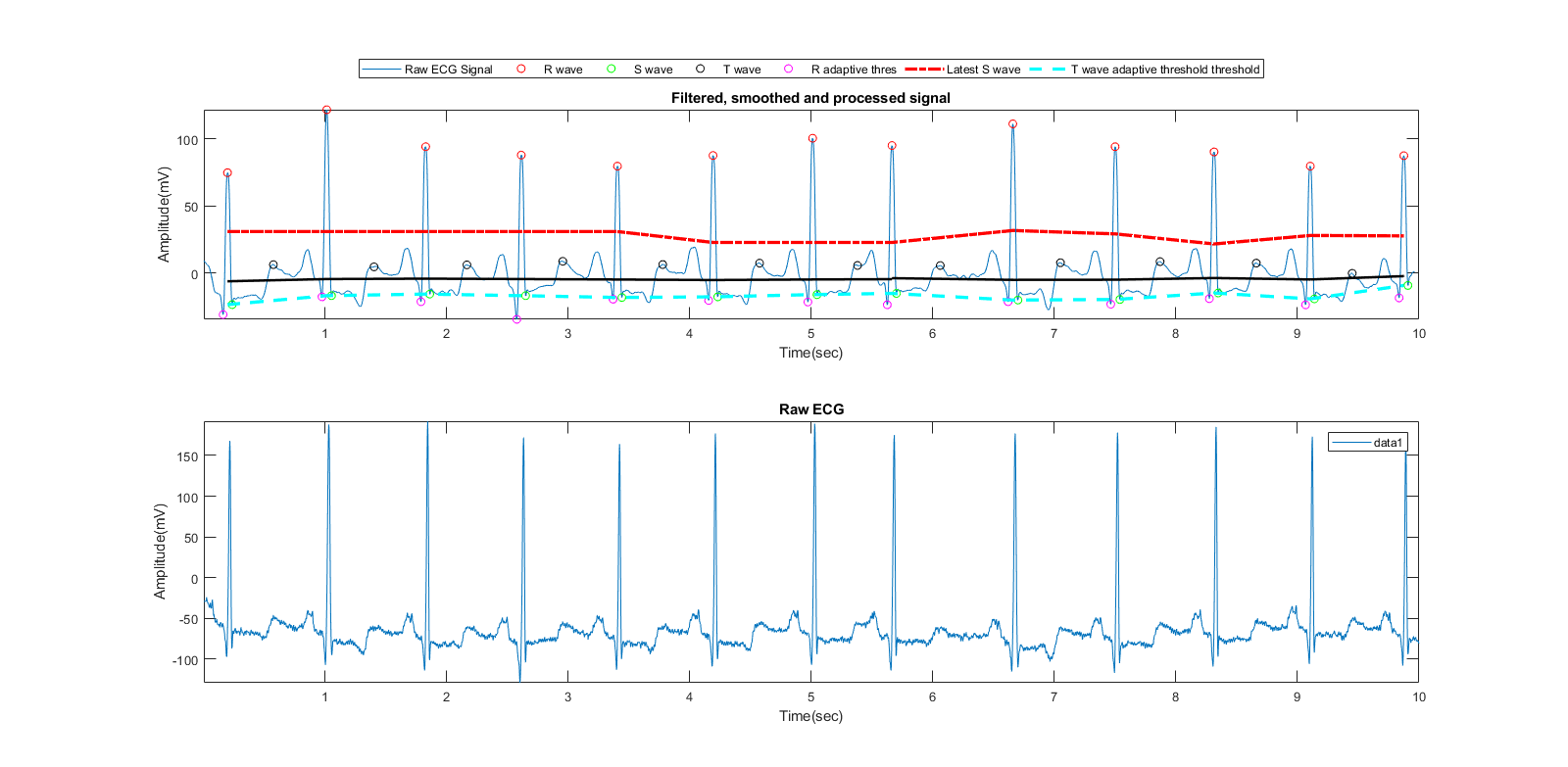 Convolution Neural Network Based Ecg Classifier