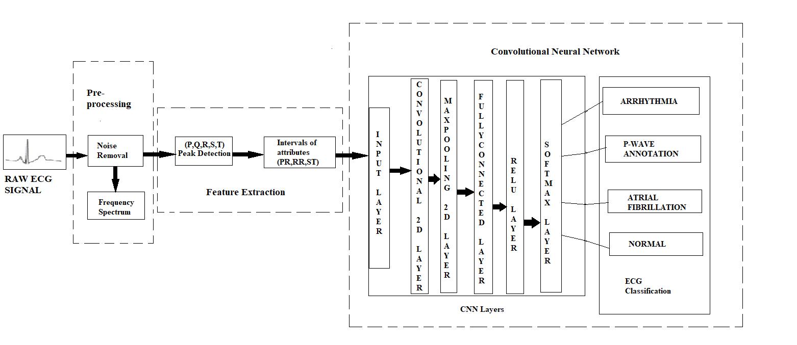 Convolution Neural Network Based Ecg Classifier