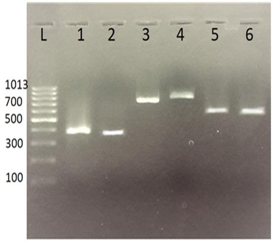 Figure 1   L: thang 1kb; 1: exon 1; 2: exon 2; 3: exon 3; 4,5,6: exon 4